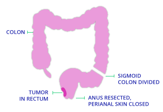 Abdominoperineal Resection Diagram for TAMIS Surgery